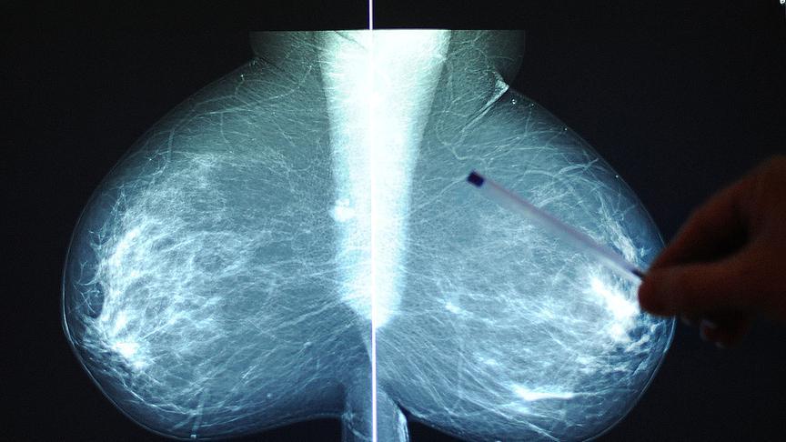 """Illustration zum Thema """"Mammografie / Brustkrebsvorsorge / Röntgen"""": Ein Bruströntgenbild am Freitag, 20. Dezember 2013, in Wien.  Österreich startet mit 2. Jänner 2014 sein organisiertes kostenloses Brustkrebs-Screeningprogramm."""